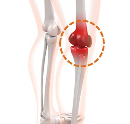اتصال مفصلی در مهاربند و تشابه آن به زانوی انسان